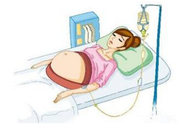 分娩前后注意事项