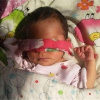 宝宝黄疸竟成脑瘫!这些错误很多人还在犯!