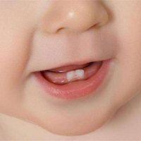 寶寶長牙有多痛苦?看完想抱抱娃!