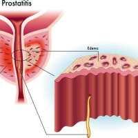 前列腺钙化可以生育吗男性健康问题是时候引起重视了