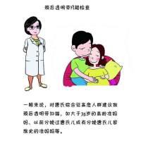 筛选唐氏综合征胎儿必须要做的检查?
