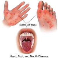 手足口、疱疹性咽峡炎卷土重来,发生这些情况要迅速就医