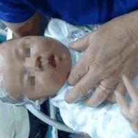 2岁男孩经常下体疼痛,奶奶却总说没事,检查后手术宝妈泪涌而出