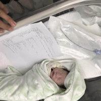 33周重度子痫前期,住院保胎脸肿的跟猪头一样,早产重4斤2两