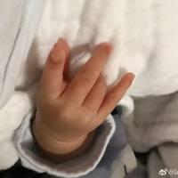 【分娩】顺产8斤健康女宝宝,轻微撕裂无侧切 