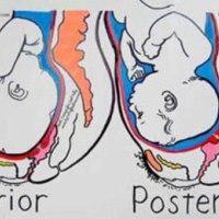 请收藏-孕期胎位不正和胎位矫正方法