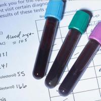 胆固醇高难怀孕?备孕如何对待胆固醇?