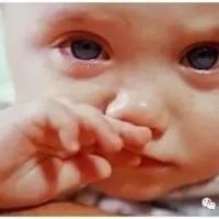 天冷宝宝一直流鼻涕?这样给宝宝擤鼻涕,会毁了他的听力!