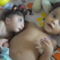 无脑妹妹和3岁哥哥躺在一起,妈妈抱走妹妹后,哥哥哭着伸手去抱