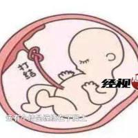 脐带打结致胎儿窒息,孕妈要警惕