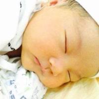 当宝宝出现新生儿黄疸,新手妈妈别着急,对症治疗是关键
