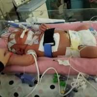 月嫂痛心提醒:又有小宝宝被亲死了!请不要随便亲宝宝