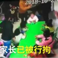 2歲男孩被掌摑致嘔吐,隻是因為輕輕咬了小女孩臉一口