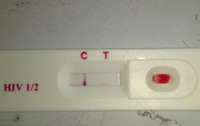 HIV抗体检测