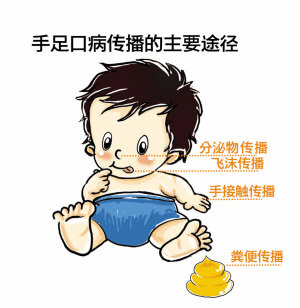 婴儿手足口病