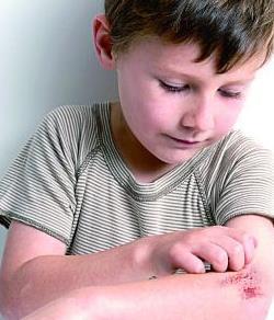 小儿过敏性皮炎
