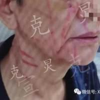 申晨间 71岁婆婆被媳妇打伤,媳妇:老公出轨且家暴,婆婆却扯我头发