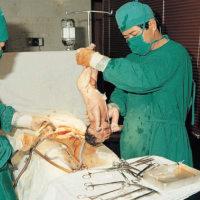剖腹产手术,为何取出胎儿必须在15分钟内?决定剖腹产的孕妈了解